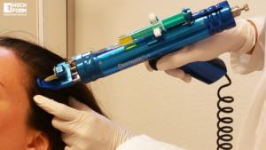Haarausfall Haartherapie